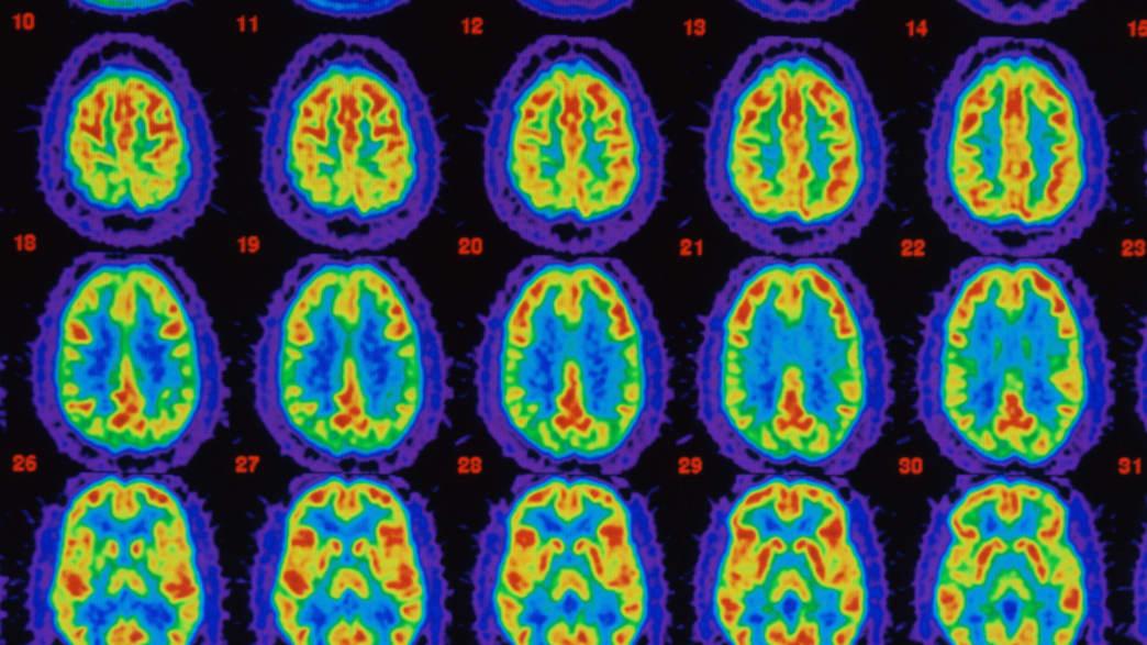 Trial Drug Reverses Alzheimer's Disease in Mice