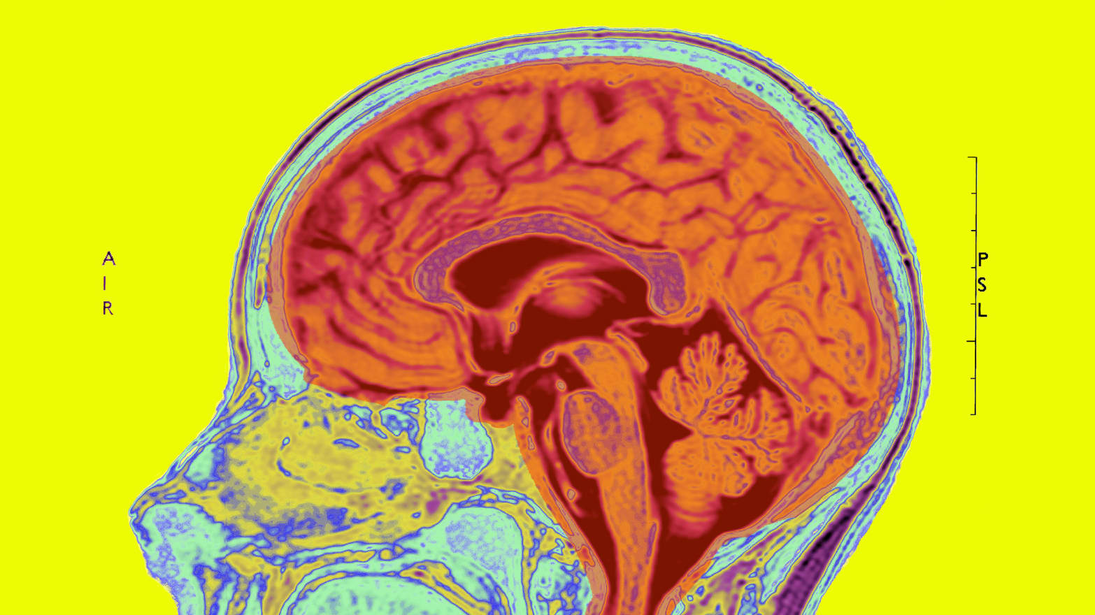 Brains Of People With Autism Spectrum >> Early Brain Injury Might Be The Root Of Autism
