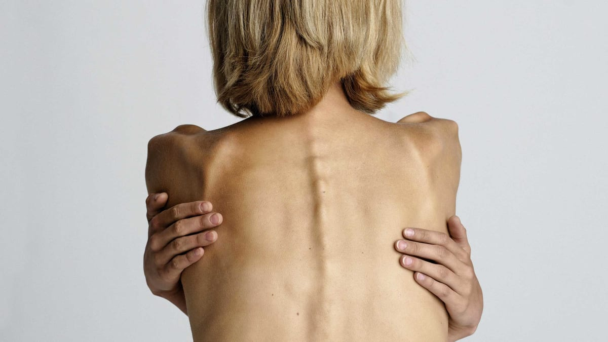 a reflection on the origins of anorexia and bulimia and the article am i thin enough yet by sharlene Anorexia nevosa, anorexia pro, bulimia, anorexia bulimia, anorexic, eating disorders, anorexia four years later, i am happily married with a beautiful daughter and another one on the way not eating is hard enough on the body, but the problem is, she may also exercise to an extreme degree.