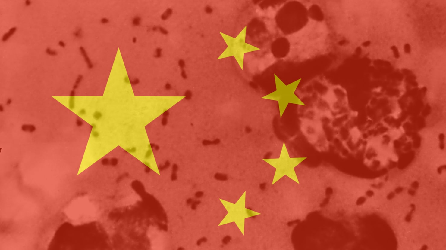 It's Not Time to Worry About China's Plague Just Yet