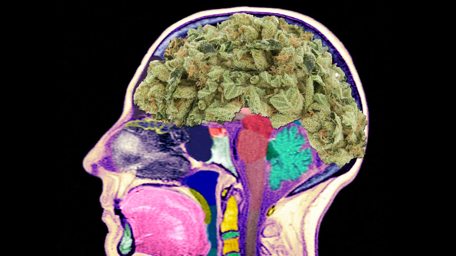 Brain study connects cannabis, oxygen changes - Medical Xpress