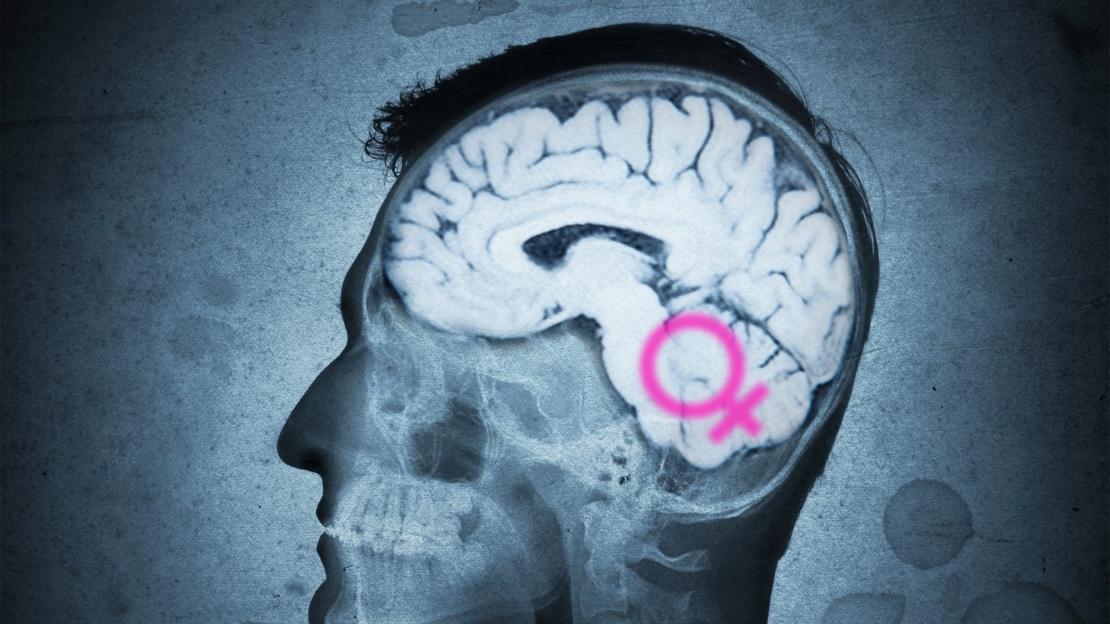 Is Sexism All in Your Brain?