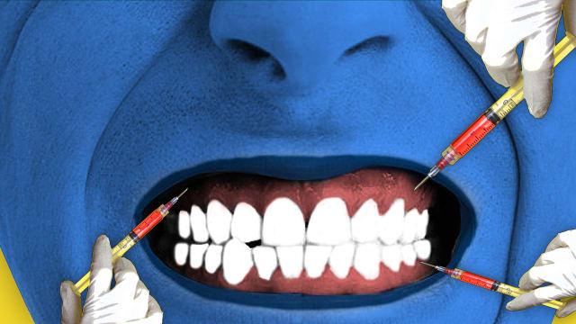 bruxism botox teeth grinding stress dental dentistry plastic surgery wrinkle