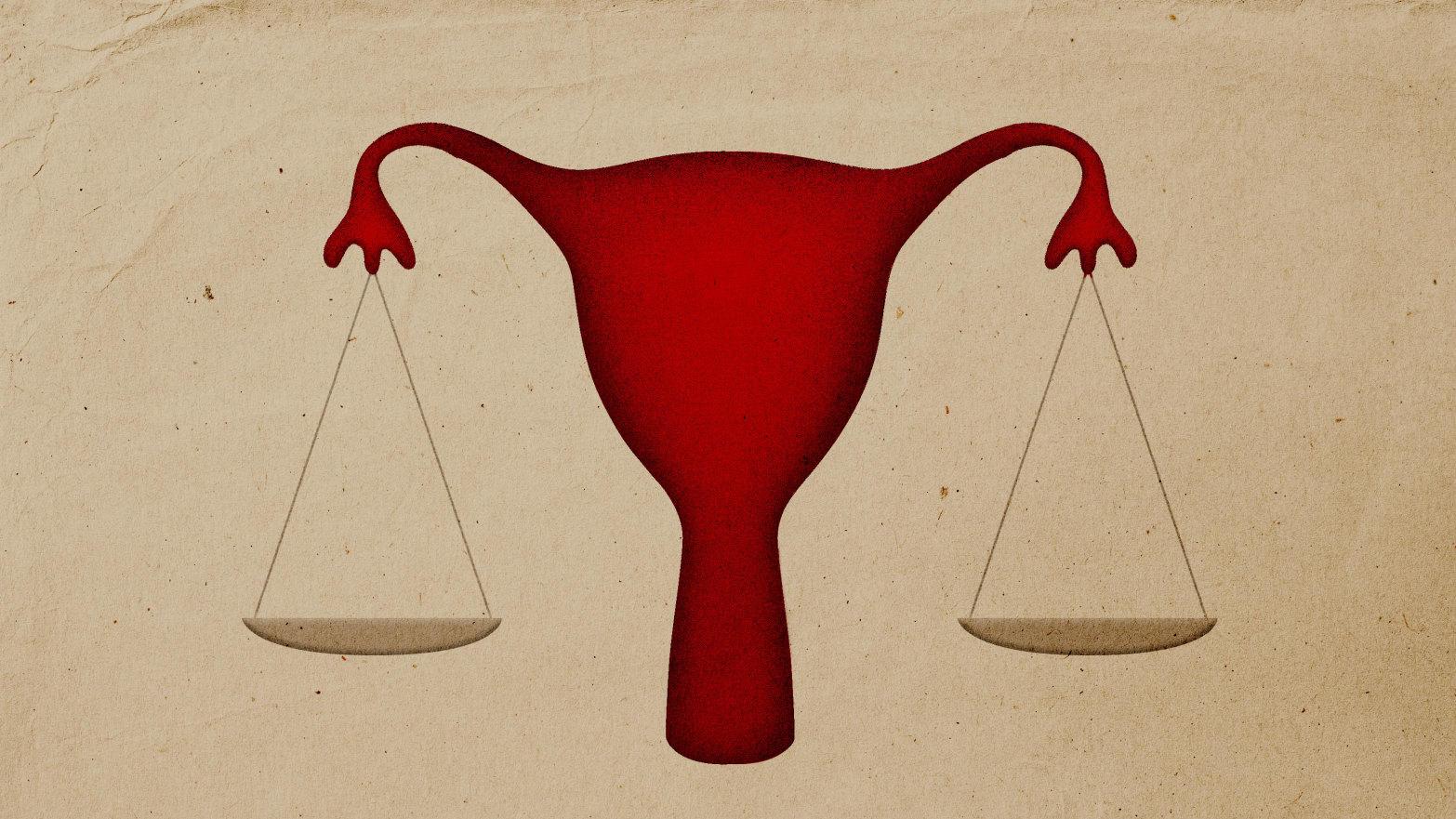 Image result for alabama abortion