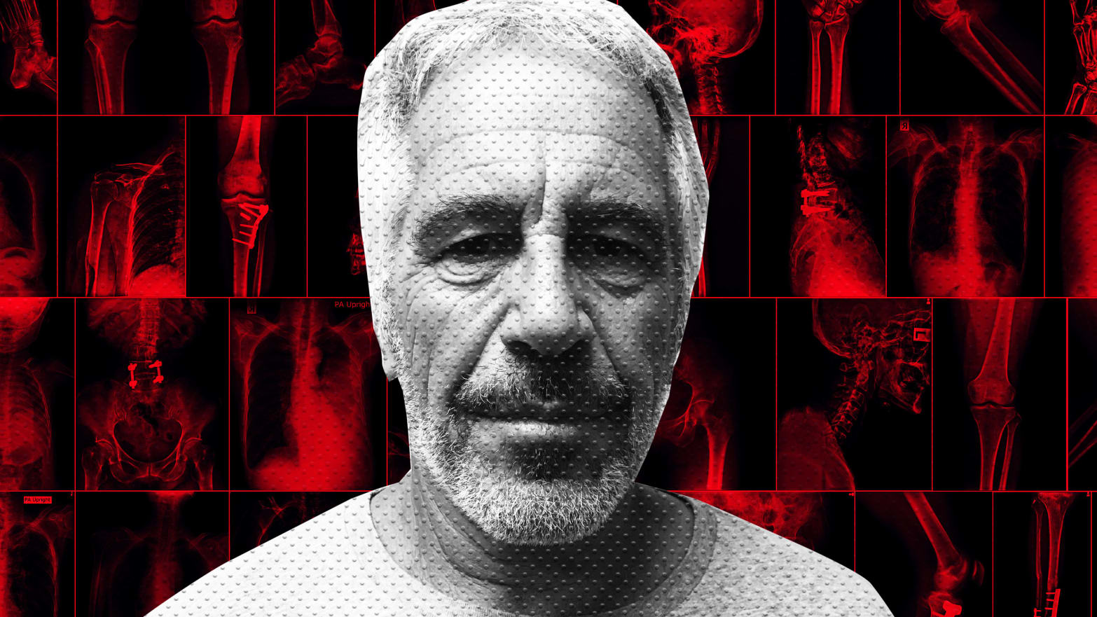 Jeffrey Epstein Camp Sends Pathologist Michael Baden to Watch Over His Autopsy