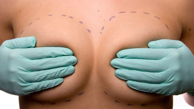 image of woman holding her breasts pressing against nipples with pen-marked dashes going around them breast cancer implant mesh 3d fda illness