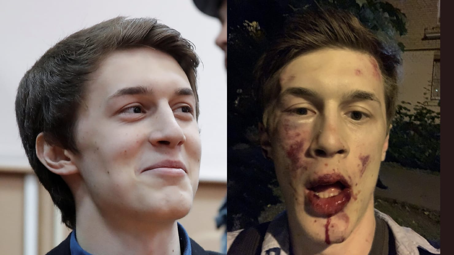 Here Is the Bloody Face of Putin's New Crackdown