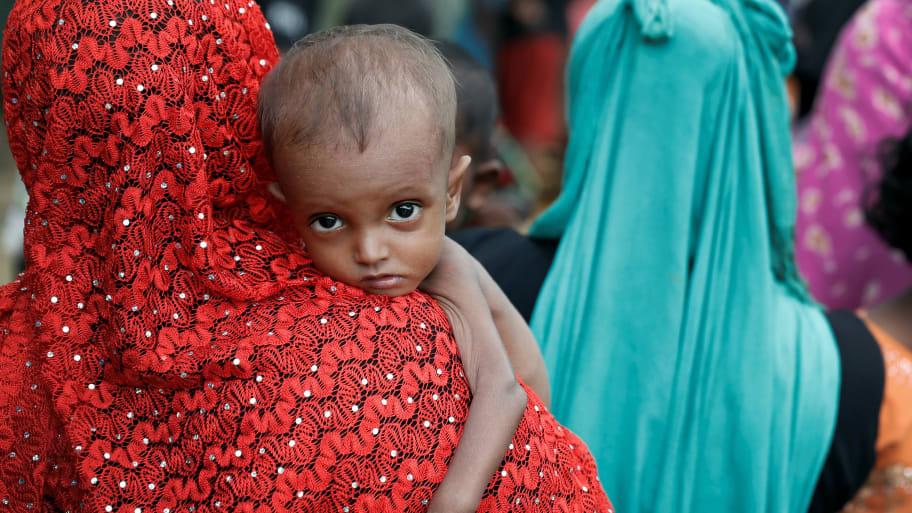 A malnourished Rohingya refugee in Cox's Bazar, Bangladesh