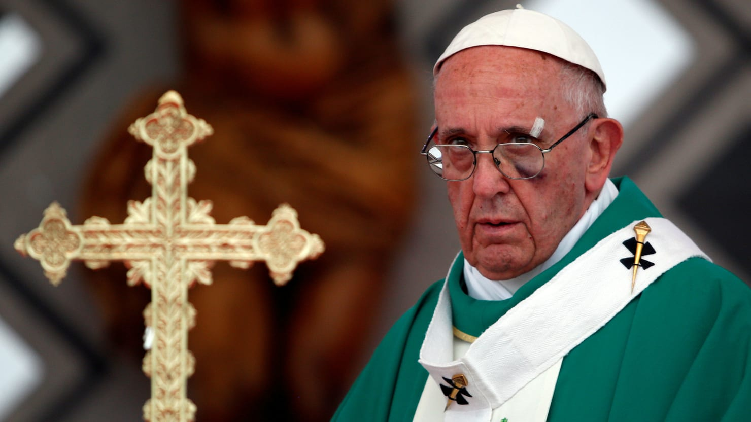 Pope Francis Sports Black Eye After Popemobile Incident in ...