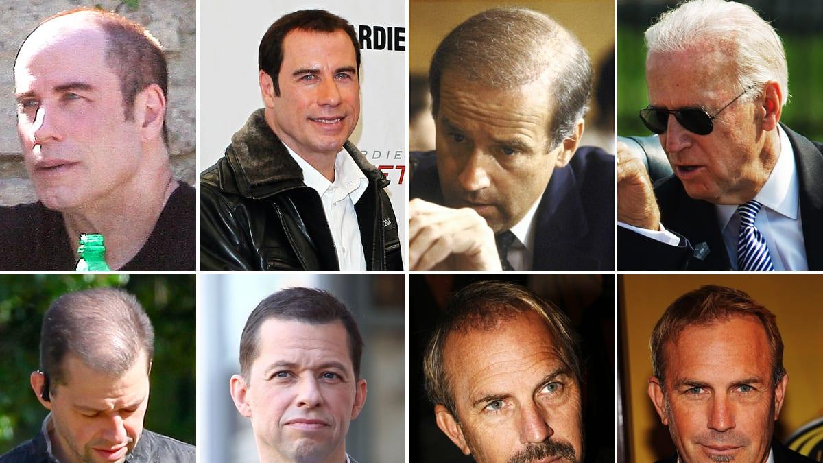 John Travolta Nicolas Cage Amp More Balding Celebs Who
