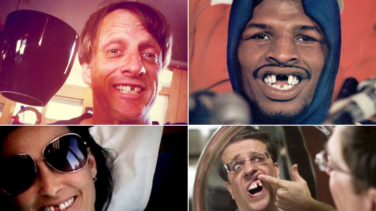 Stars who are shocked by bad teeth 09/29/2012 48