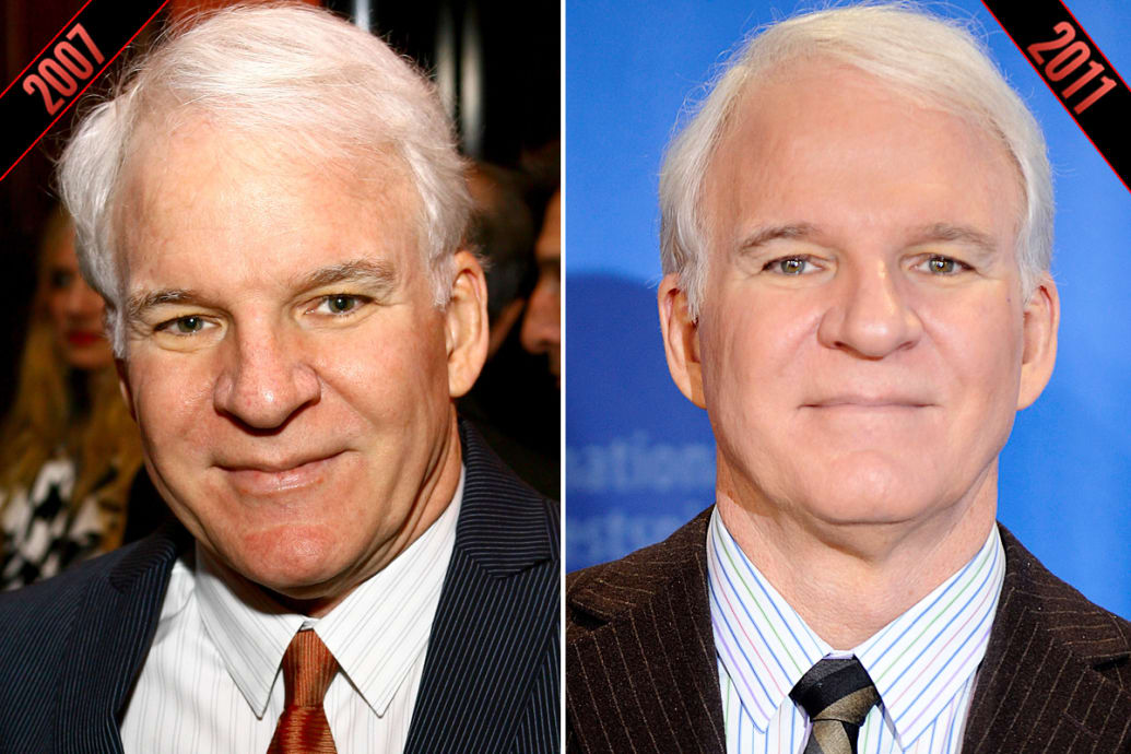Steve Martin Simon Cowell More Male Celebs Who May Have Had Plastic Surgery Photos