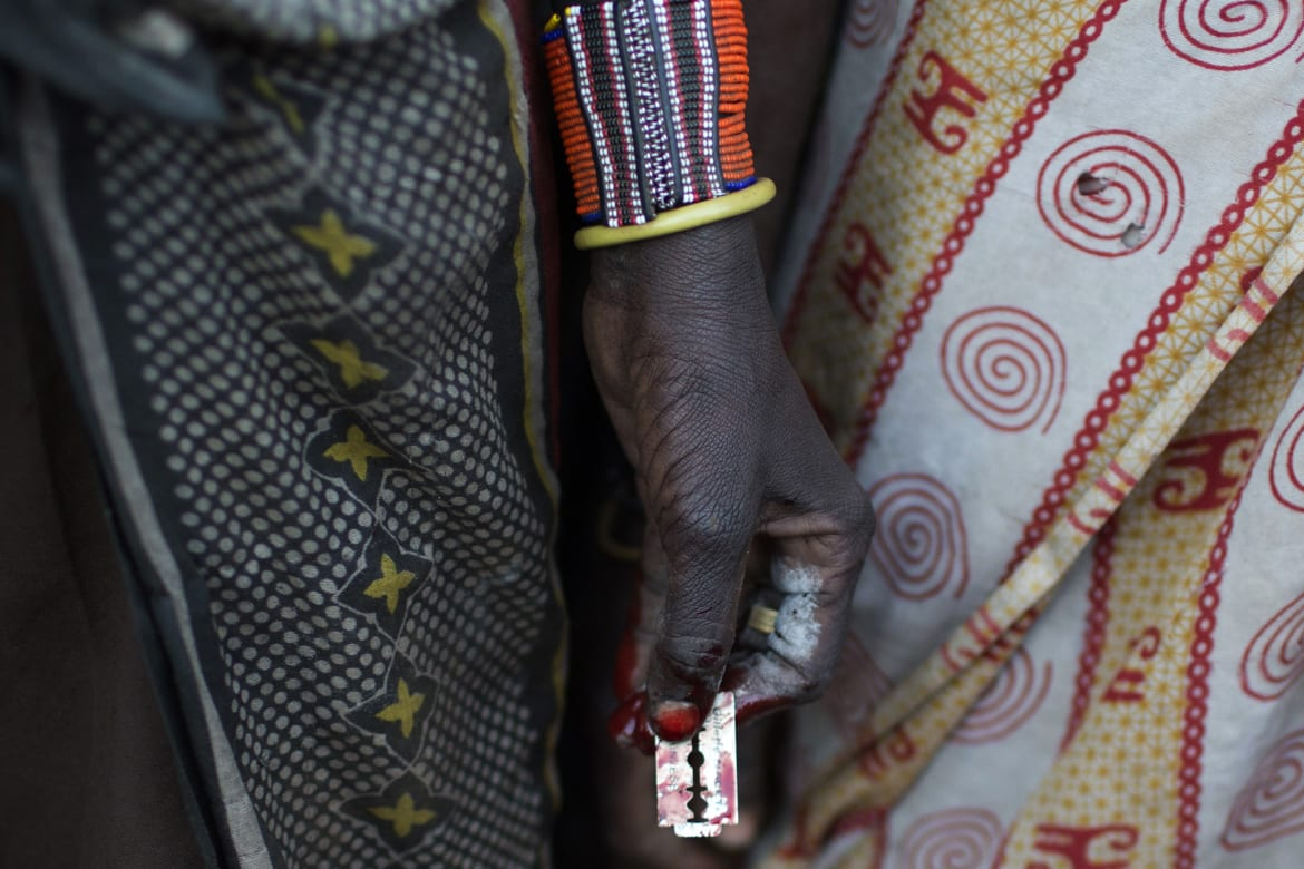 17 Bizarre Images Of Female Circumcision