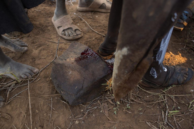 Circumcision Complications - m