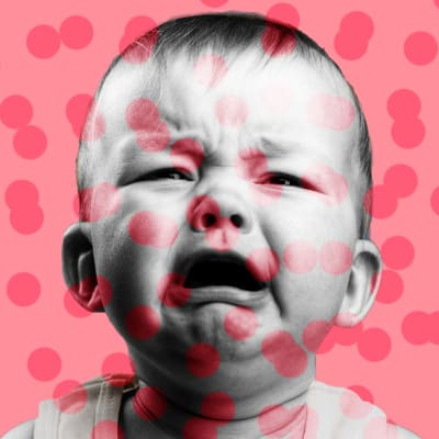 image of crying baby with pink background and darker spots all over measles rockland county new york unvaccinated minors antivaxxer anti vaxxer easter passover